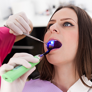 Woman Getting a Cavity Filled