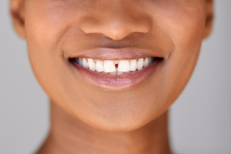 Diastema Gap Teeth