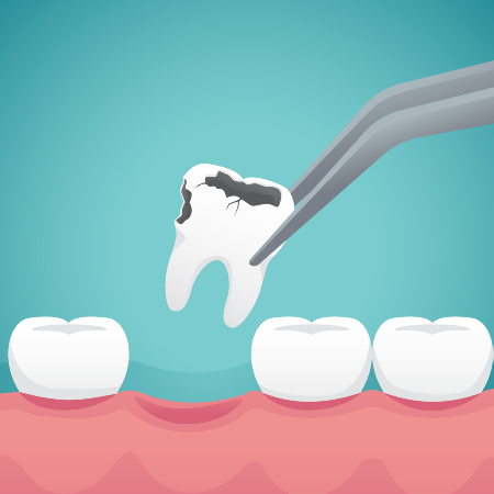 Tooth Extraction, Dry Socket