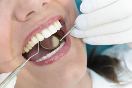 Periodontal Maintenance Checkup